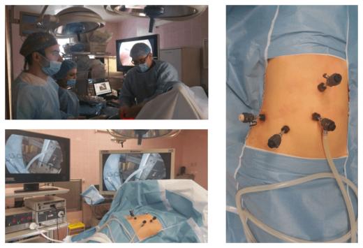 Лапароскопическая нефропексия в операционной