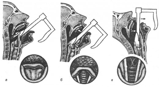 схема проведения ларингоскопии