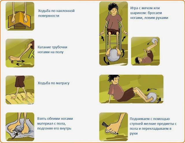 Лечение от плоскостопии в домашних условиях