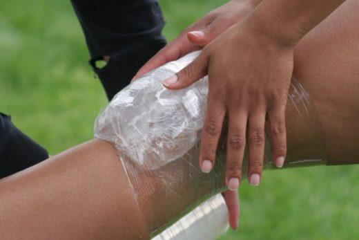Ледяной компресс наложен на область коленного сустава