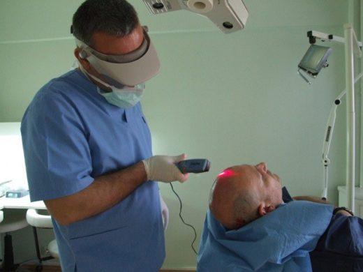 Лечение облысения лазером