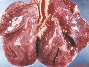 лёгкие при синдроме гудпасчера