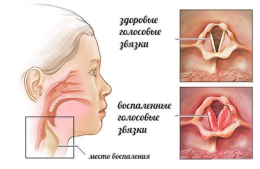 Ларингит: здоровые и воспалённые голосовые связки