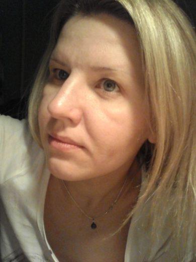 Лицо женщины с отёчным синдромом