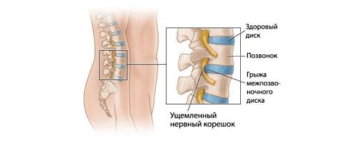 Ущемление корешка нерва межпозвоночной грыжей
