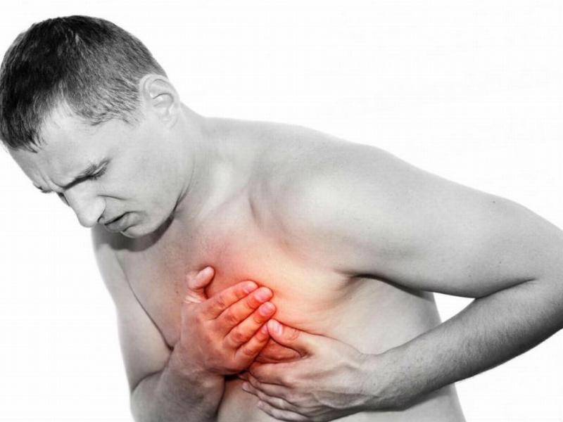Межрёберная невралгия: как справиться с болью