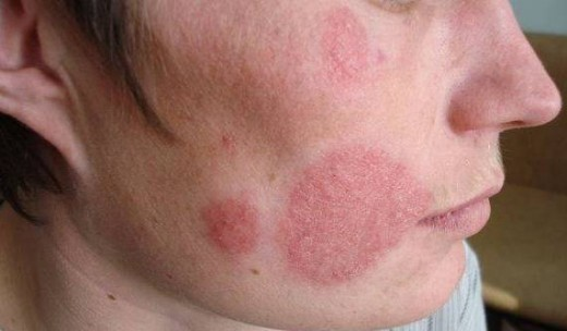 помогает ли супрастин от аллергии