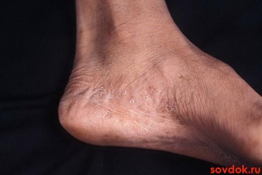 микоз стопы у пожилого
