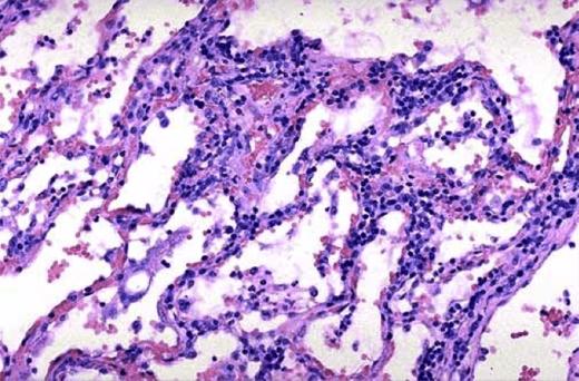 Микроскопическое изображение ткани легких при интерстициальной пневмонии