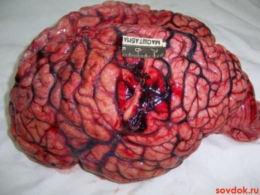 мозг человека - инсульт