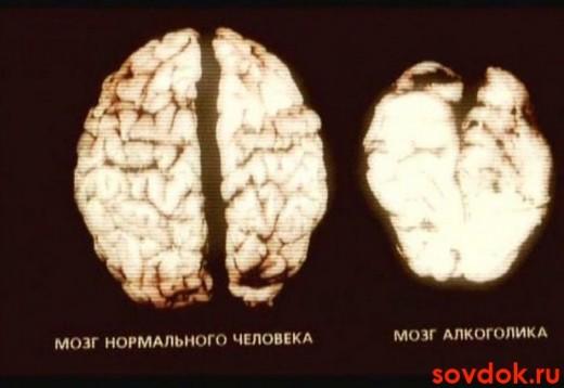 мозг нормального и алкоголика