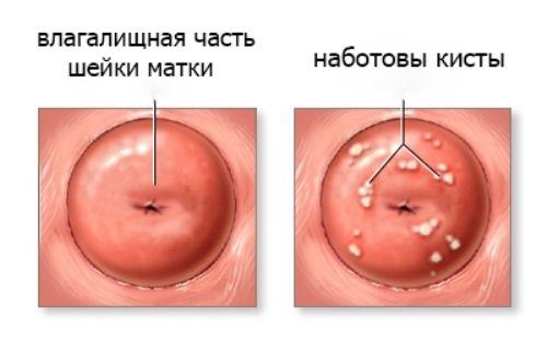 vlagalishe-posle--ov-foto