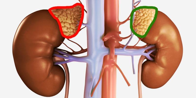 Нехватка гормонов может стать фатальной: гипофункция коры надпочечников
