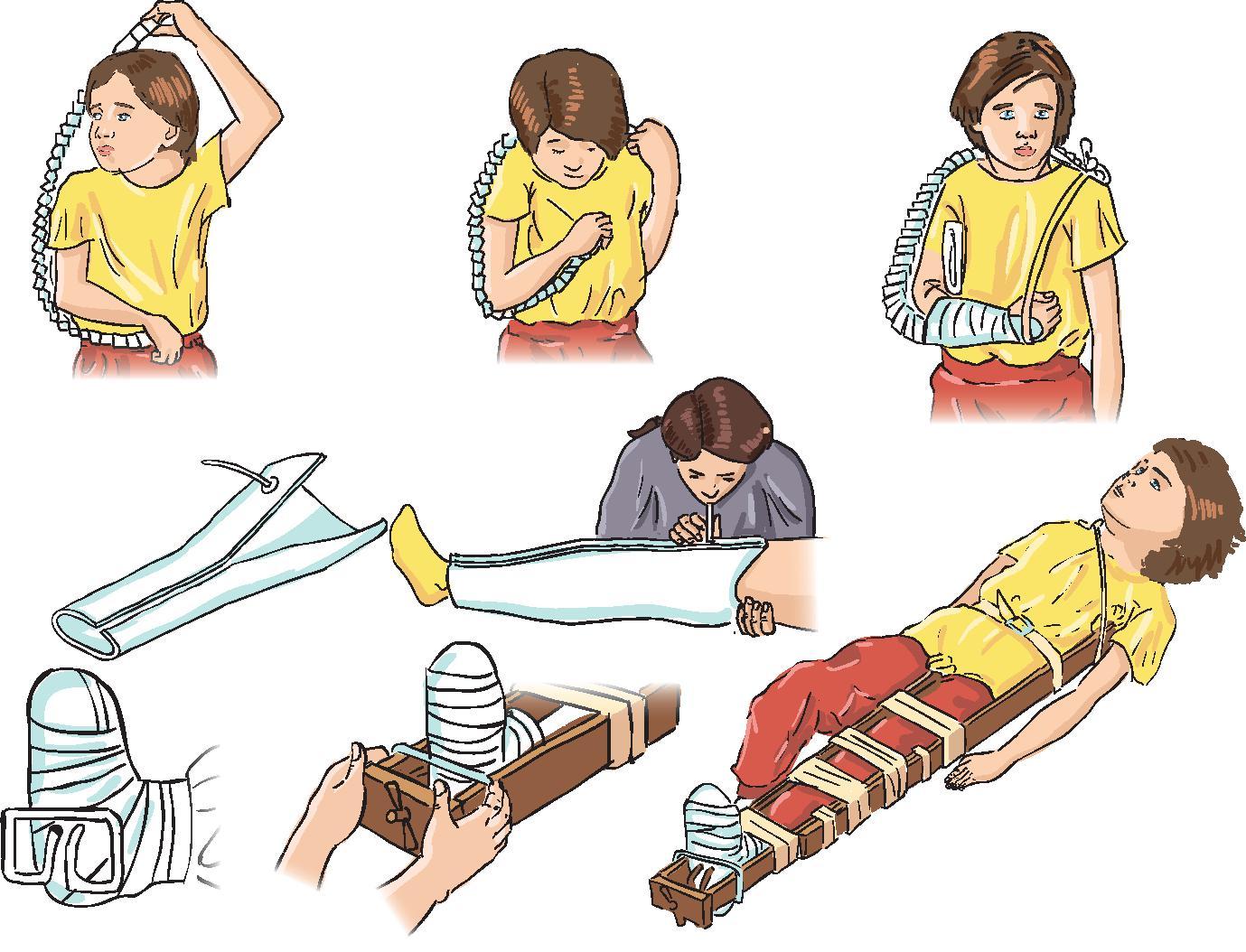 Как сделать медицинскую шину