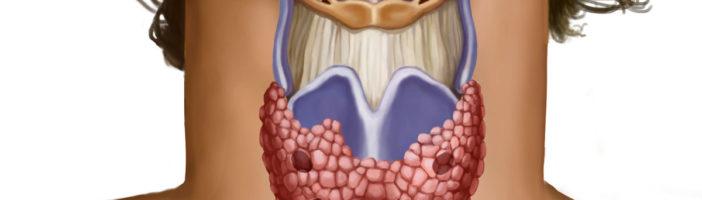 Народные средства при заболеваниях щитовидной железы