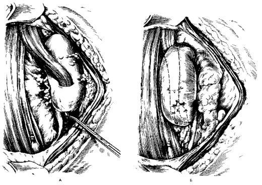 Нефропексия поэтапно на схеме
