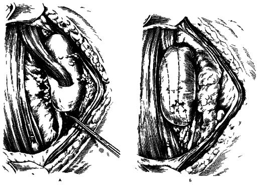 Нефропексия (схема)