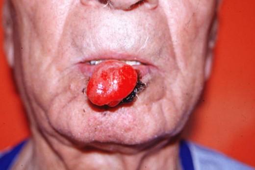 неороговевающий плоскоклеточный рак