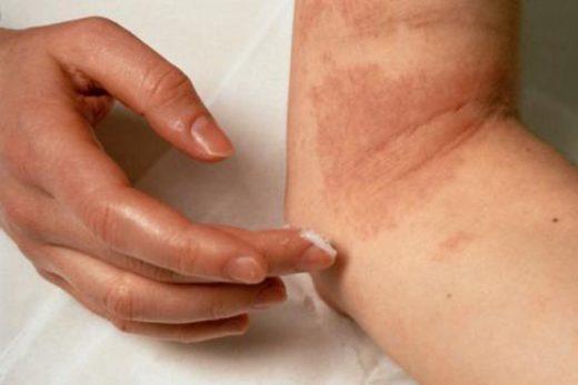 Нейродермит у взрослых и детей: симптомы и лечение, в том числе народными средствами, причины возникновения на лице, руках и в других местах