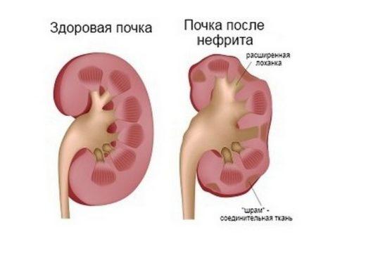 Здоровая почка и после перенесённого воспаления