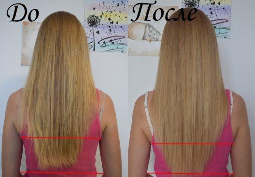 Никотиновая кислота для волос: фото до и после