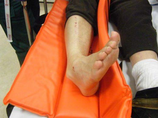 Нога на носилках