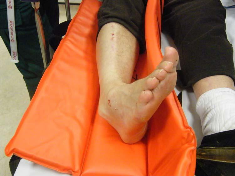 находитесь: симптомы при трещине стопы надеюсь