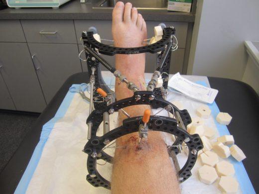 Нога во внешнем аппарате для чрескостного остеосинтеза