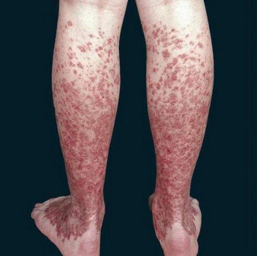 Ноги при болезни Шамберга