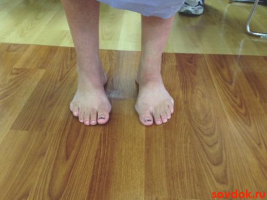 ноги женщины при невропатии Шарко-Мари