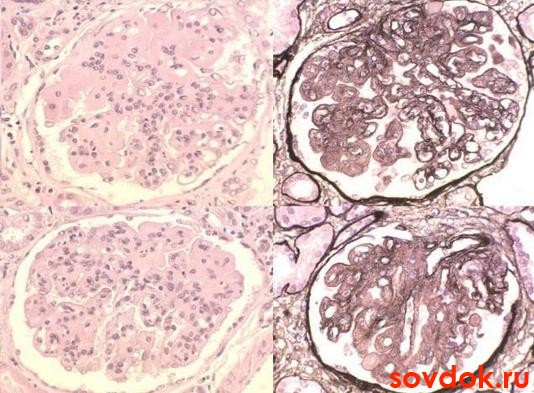 Диета при системной склеродермии - Диетология MedBook