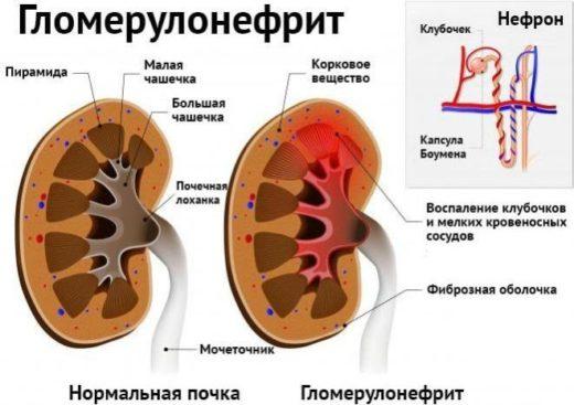 Нормальная почка и поражённая гломерулонефритом