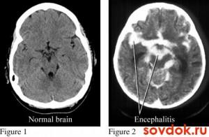 нормальный мозг и энцефалит