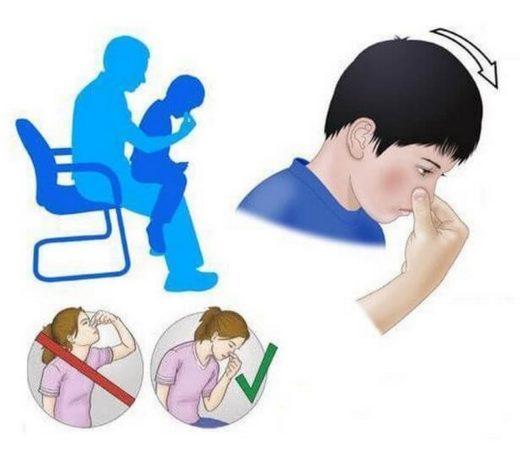 Наглядное изображение первой помощи при носовом кровотечении