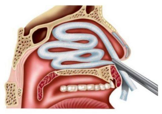 Иллюстрация — тампонада передней полости носа