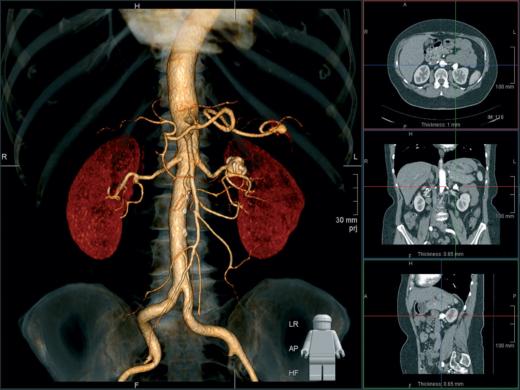 Объёмная картина почек и брюшной аорты