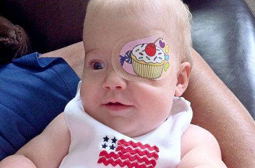 Окклюзионная наклейка на глазу малыша