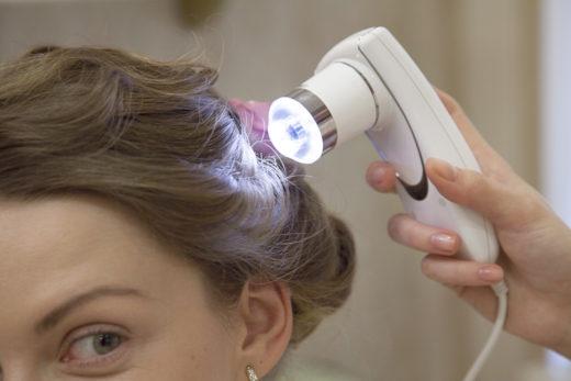 Исследованеи волос: фототрихограмма
