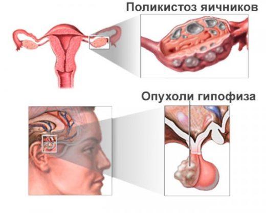 Причины олигоменореи — поликистоз яичников и оухоль гипофиза