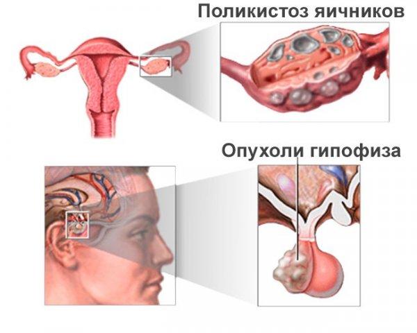 могут прсле удаления аденомы гипофиза менструации восстановится есть