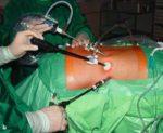 Операция по удалению опухоли надпочечника