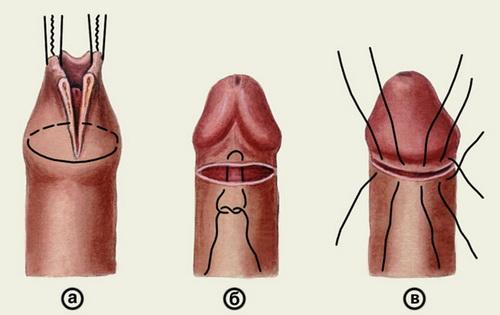 Операция при баланопостите