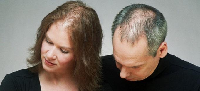 Выпадение волос андрогенная алопеция