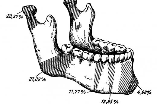 Основные места переломов нижней челюсти