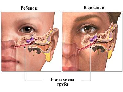 Особенности расположения слуховой трубы у детей