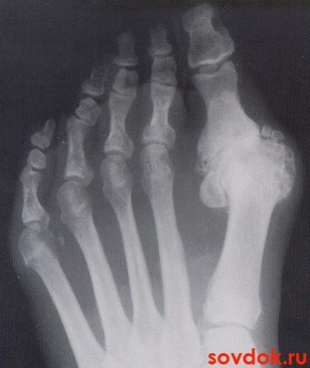 остеофиты на рентгенограмме