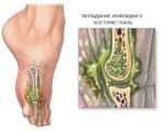 Остеомиелит костей стопы