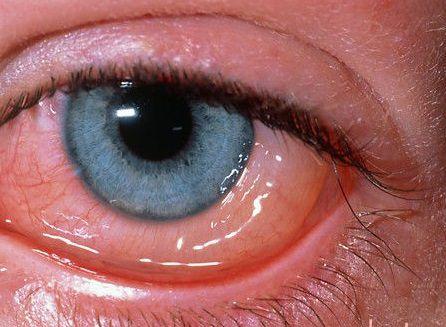 отёчный красный глаз