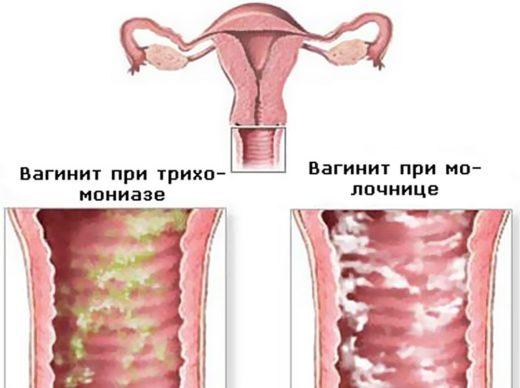 острый вагинит