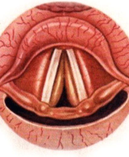 Отёчно-инфильтративный ларингит